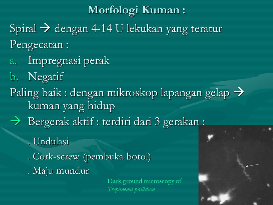 . Undulasi Morfologi Kuman :