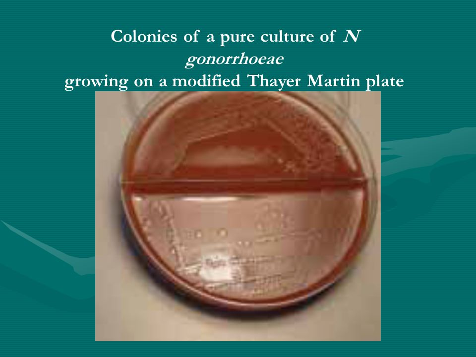 Colonies of a pure culture of N gonorrhoeae