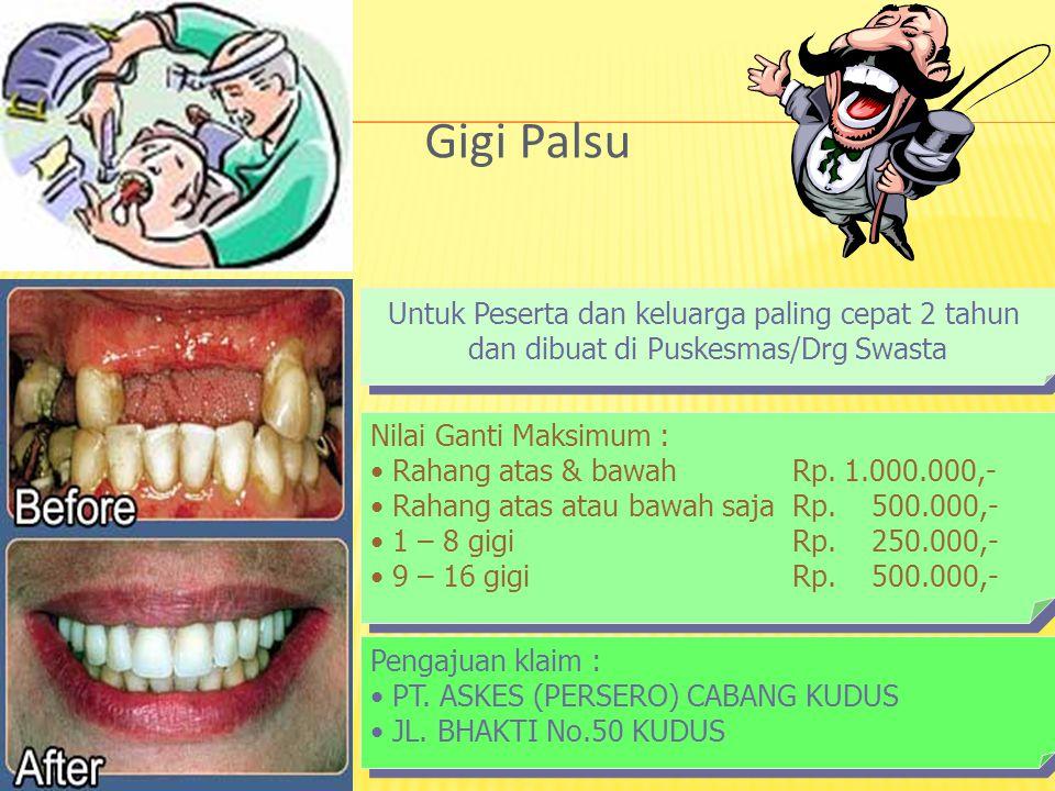 Gigi Palsu Untuk Peserta dan keluarga paling cepat 2 tahun