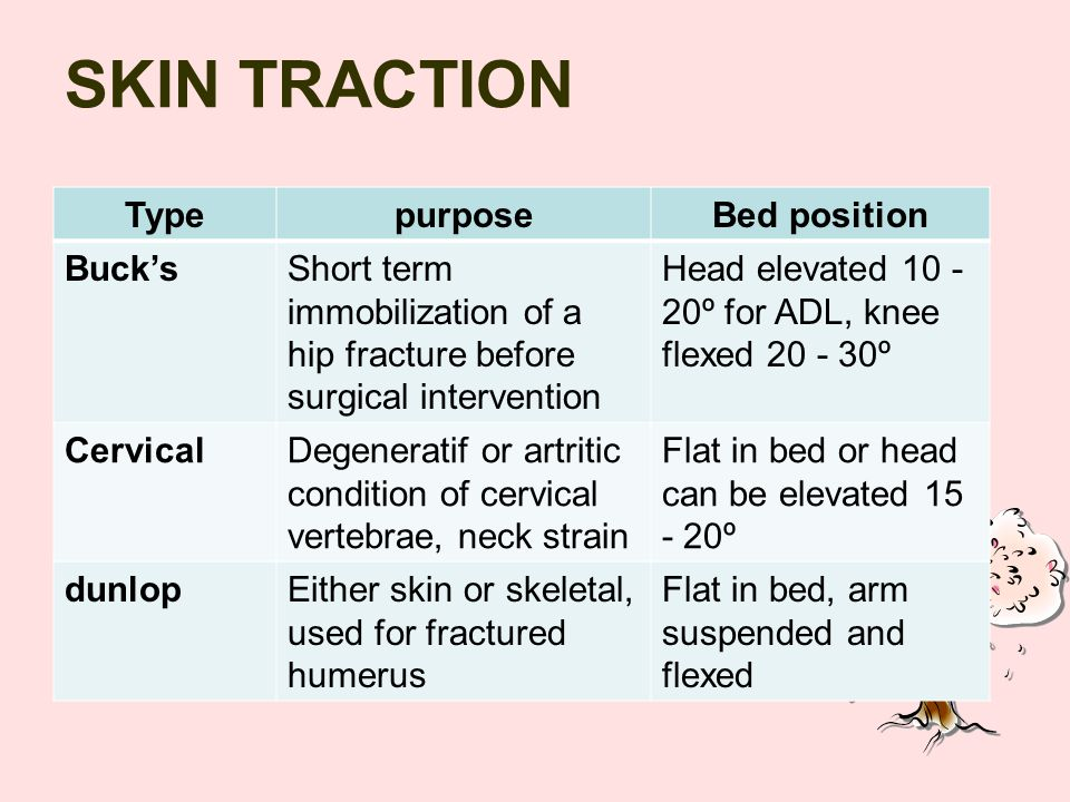 SKIN TRACTION Type purpose Bed position Buck's
