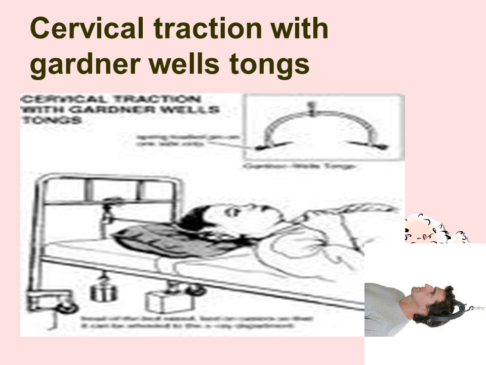 Cervical traction with gardner wells tongs