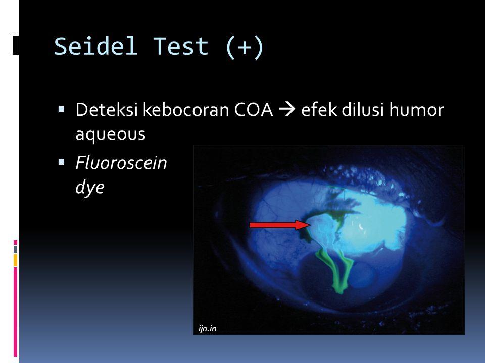 Seidel Test (+) Deteksi kebocoran COA  efek dilusi humor aqueous
