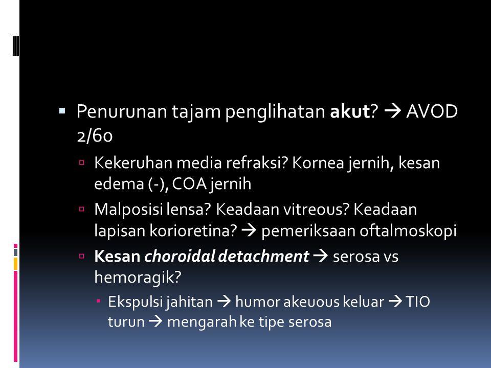 Penurunan tajam penglihatan akut  AVOD 2/60