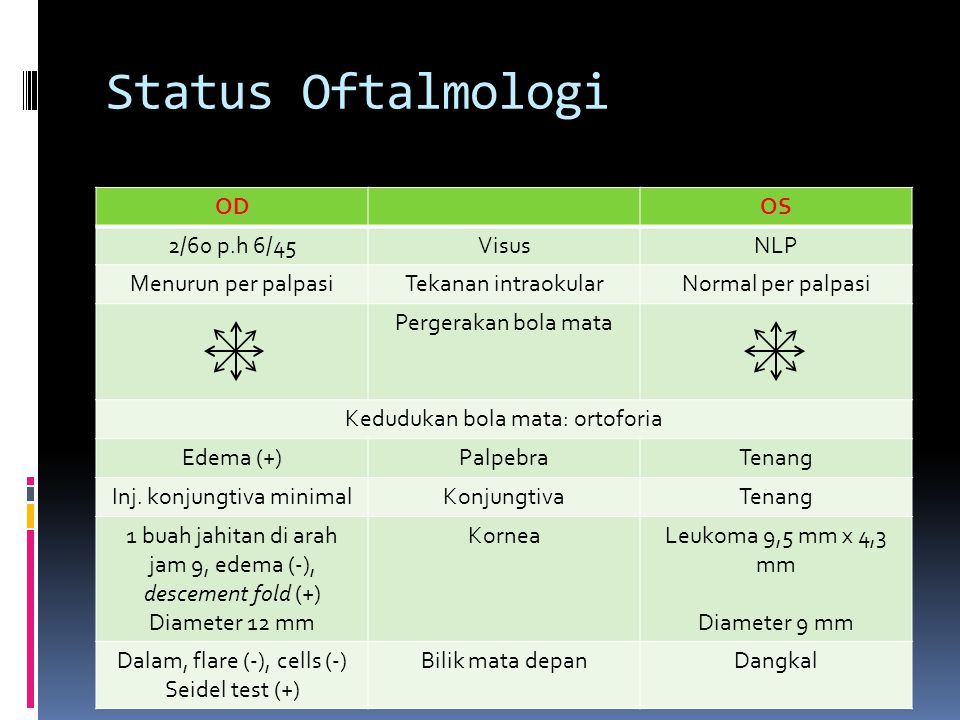 Status Oftalmologi OD OS 2/60 p.h 6/45 Visus NLP Menurun per palpasi