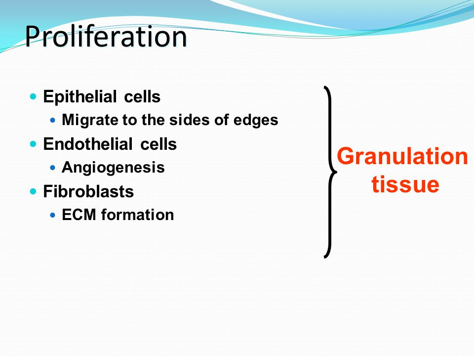 Proliferation Granulation tissue Epithelial cells Endothelial cells