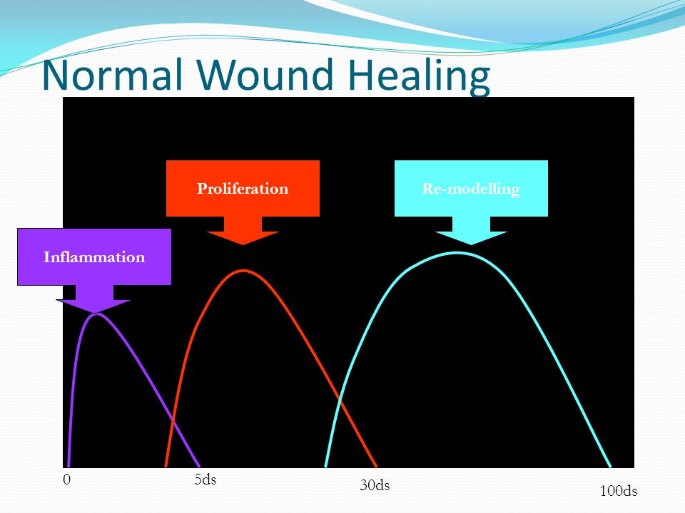Normal Wound Healing Proliferation Re-modelling Inflammation 5ds 30ds