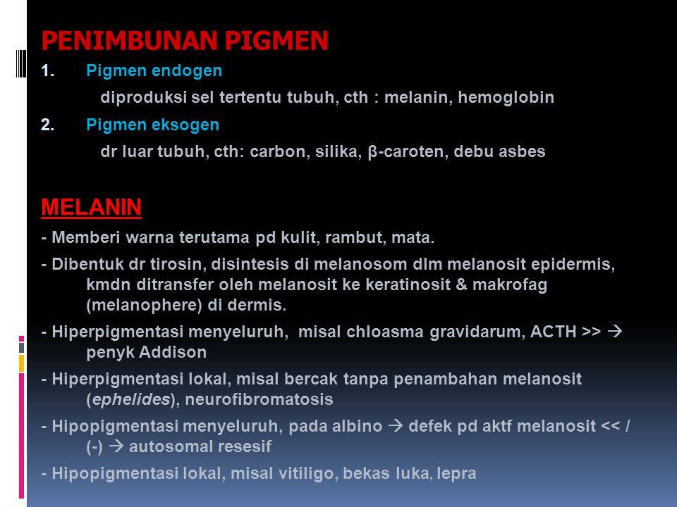 PENIMBUNAN PIGMEN MELANIN Pigmen endogen