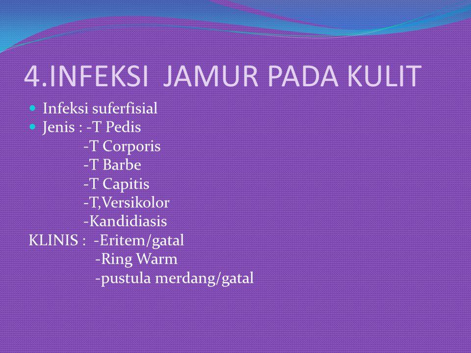 4.INFEKSI JAMUR PADA KULIT
