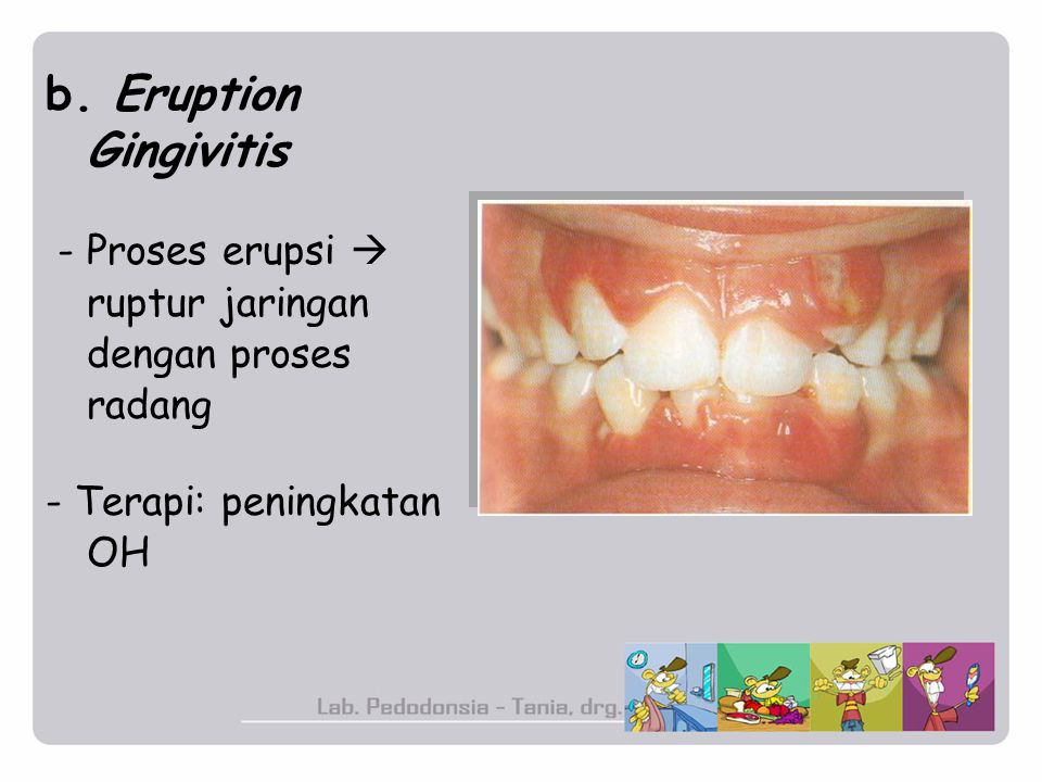b. Eruption Gingivitis - Proses erupsi  ruptur jaringan dengan proses radang.