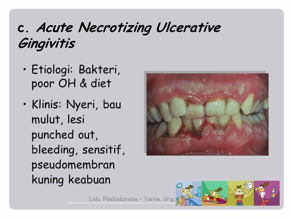 c. Acute Necrotizing Ulcerative Gingivitis