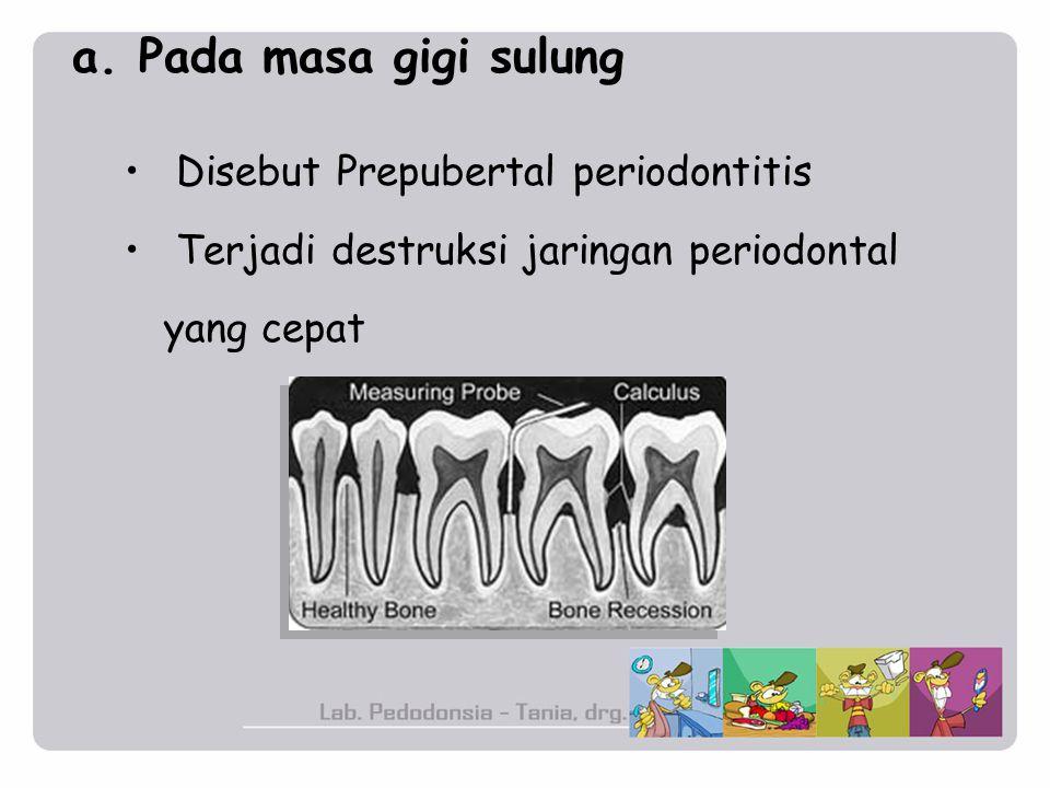 a. Pada masa gigi sulung Disebut Prepubertal periodontitis