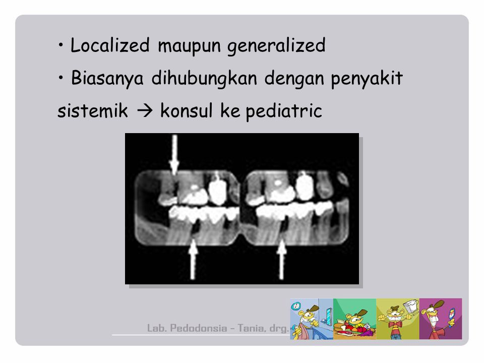 Localized maupun generalized