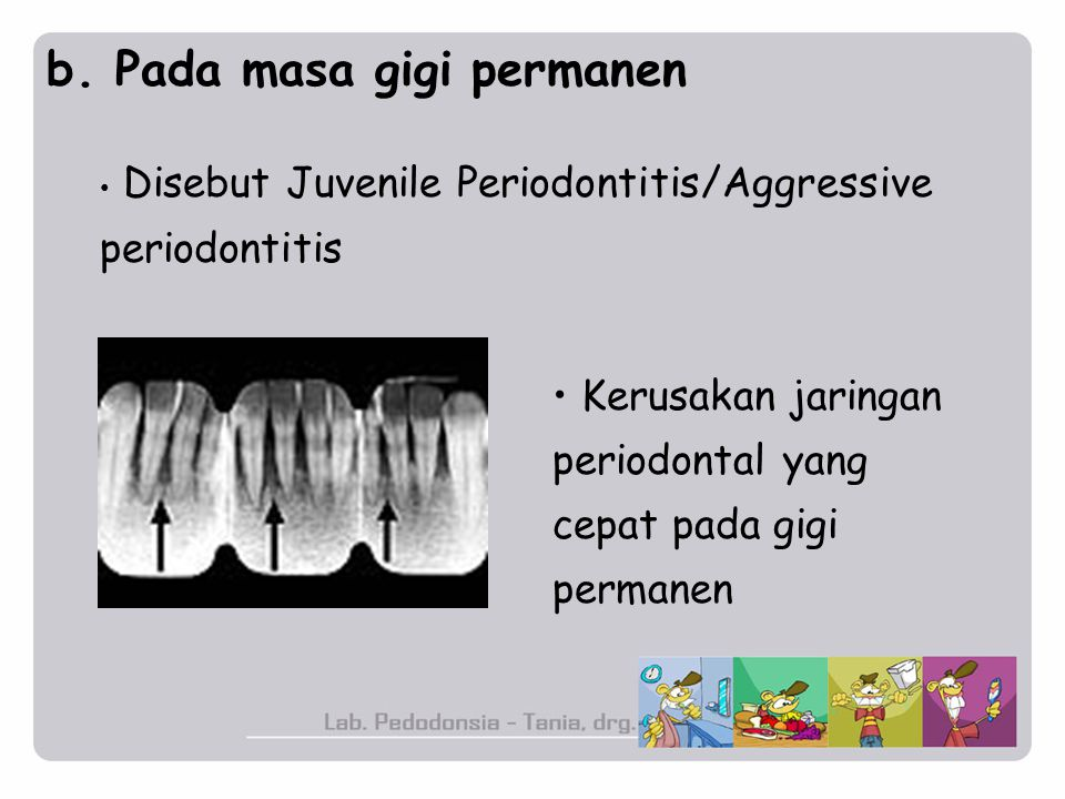 b. Pada masa gigi permanen