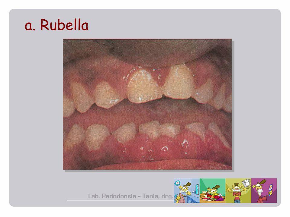 a. Rubella