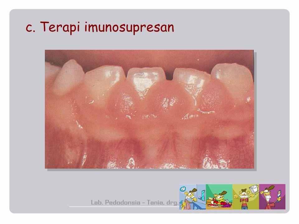 c. Terapi imunosupresan