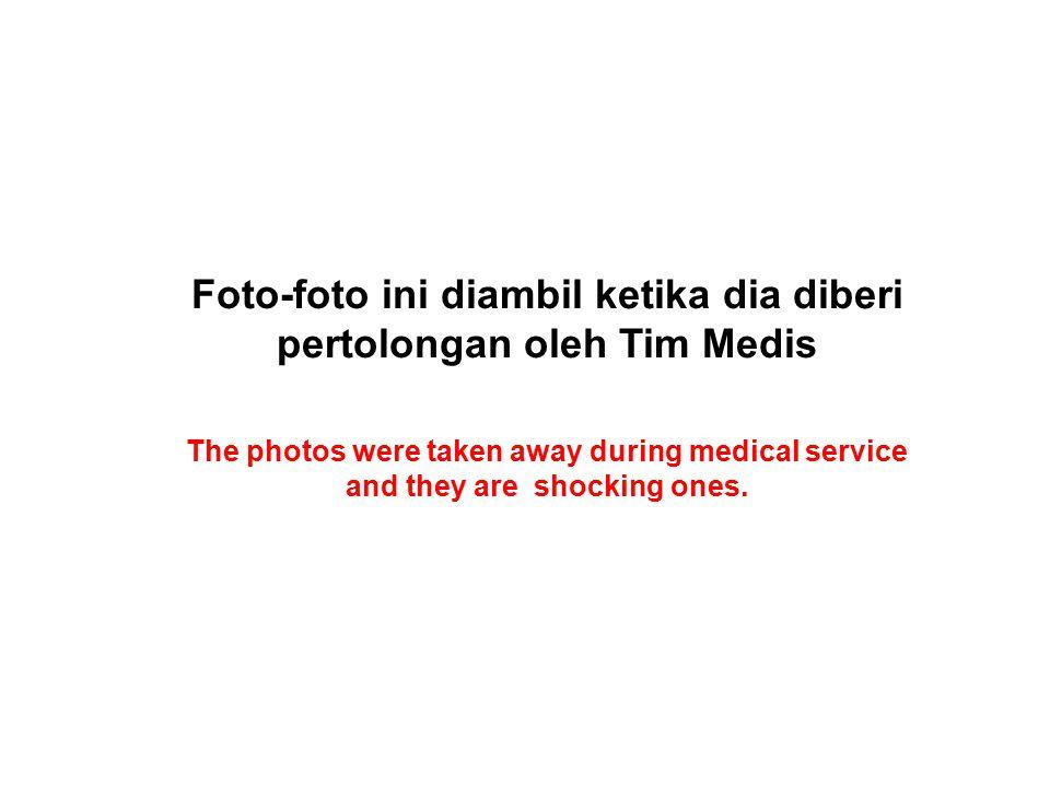 Foto-foto ini diambil ketika dia diberi pertolongan oleh Tim Medis