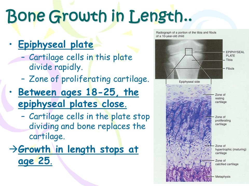 Bone Growth in Length.. Epiphyseal plate