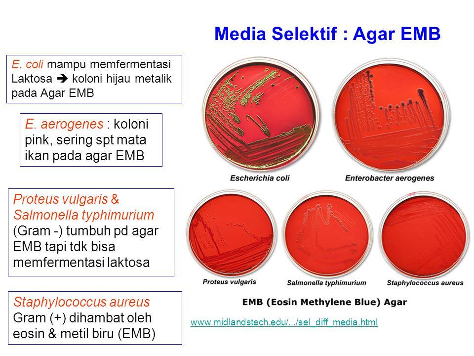 Media Selektif : Agar EMB