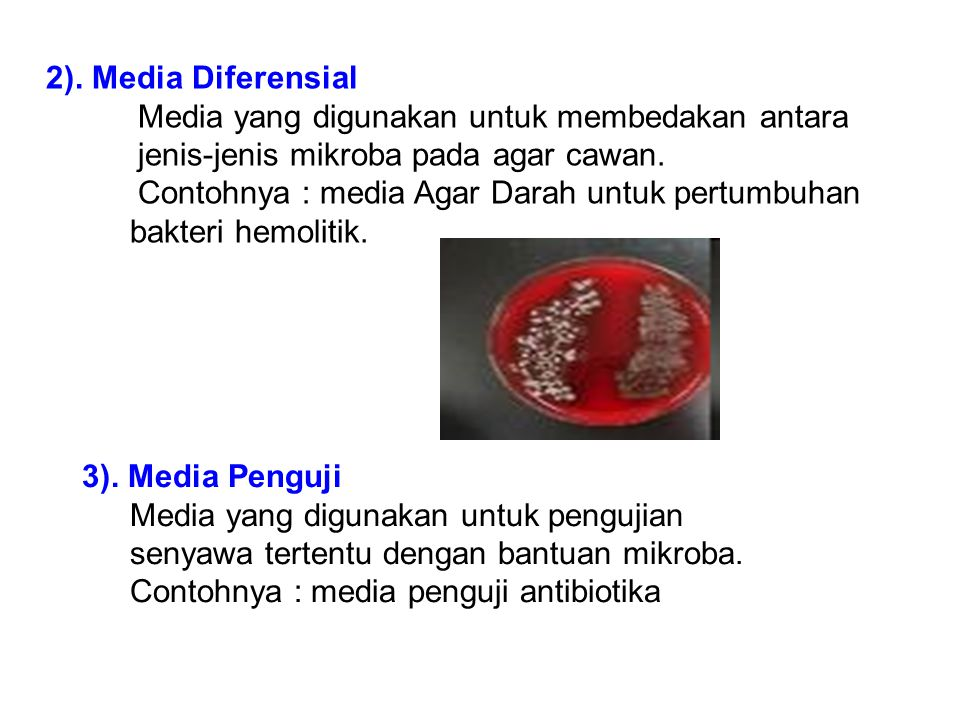 2). Media Diferensial Media yang digunakan untuk membedakan antara. jenis-jenis mikroba pada agar cawan.