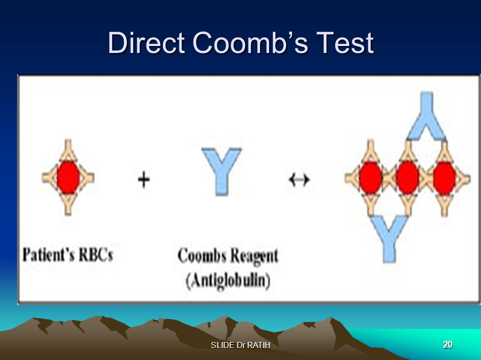 Direct Coomb's Test SLIDE Dr RATIH 20