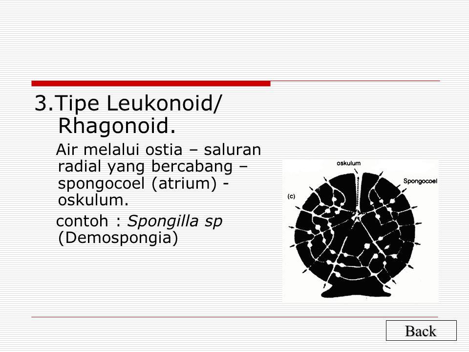 3.Tipe Leukonoid/ Rhagonoid.