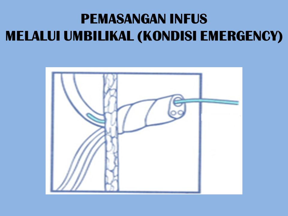 PEMASANGAN INFUS MELALUI UMBILIKAL (KONDISI EMERGENCY)
