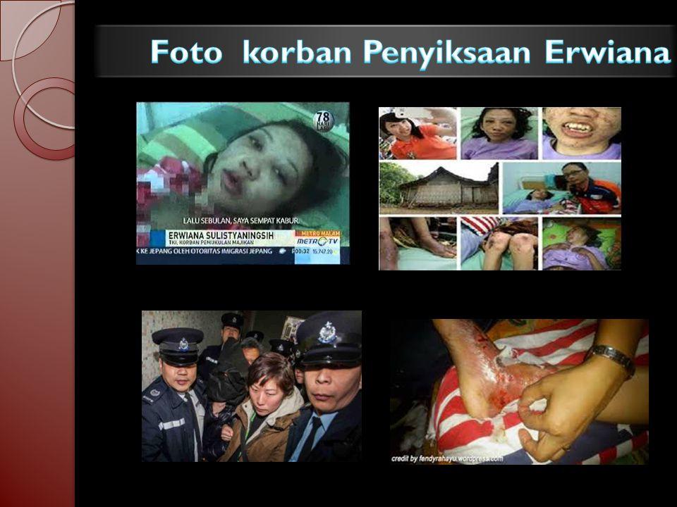 Foto korban Penyiksaan Erwiana