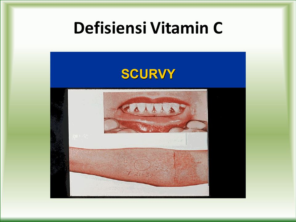 Defisiensi Vitamin C