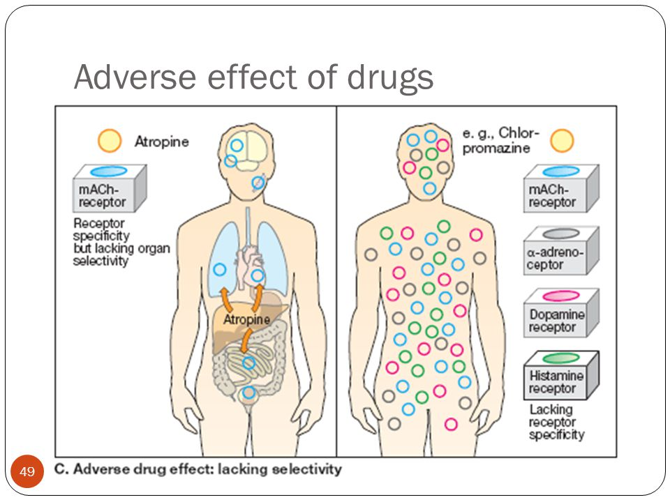 Adverse effect of drugs