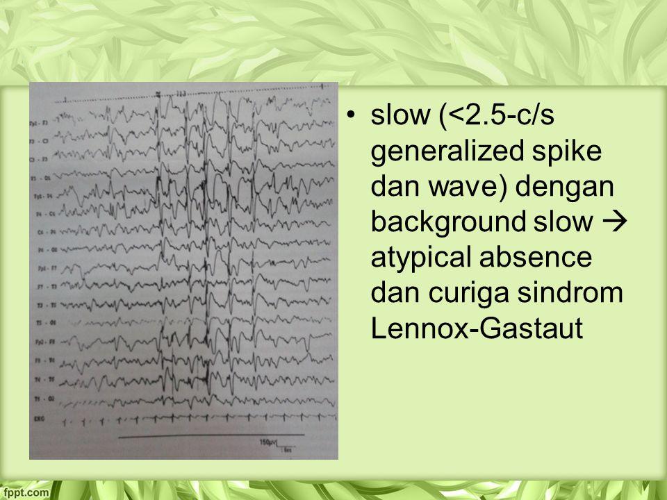 slow (<2.5-c/s generalized spike dan wave) dengan background slow  atypical absence dan curiga sindrom Lennox-Gastaut