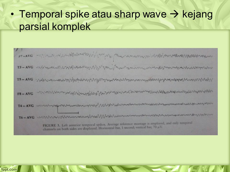 Temporal spike atau sharp wave  kejang parsial komplek
