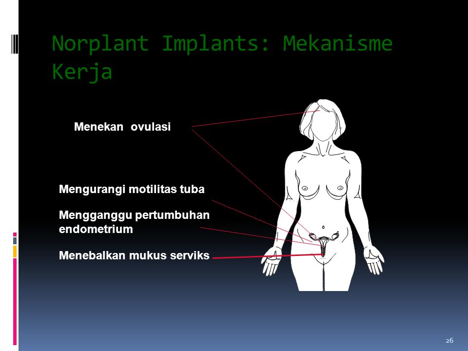 Norplant Implants: Mekanisme Kerja