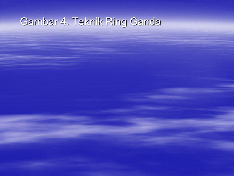 Gambar 4. Teknik Ring Ganda