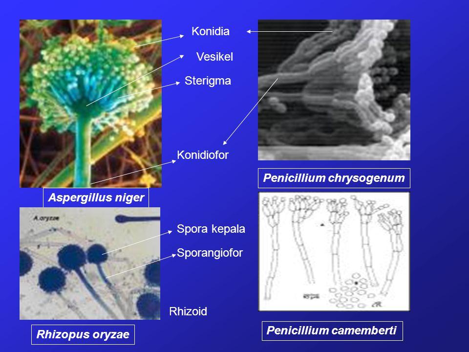 Konidia Vesikel. Sterigma. Konidiofor. Penicillium chrysogenum. Aspergillus niger. Spora kepala.