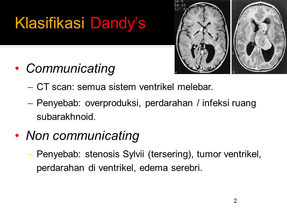 Klasifikasi Dandy's Communicating Non communicating