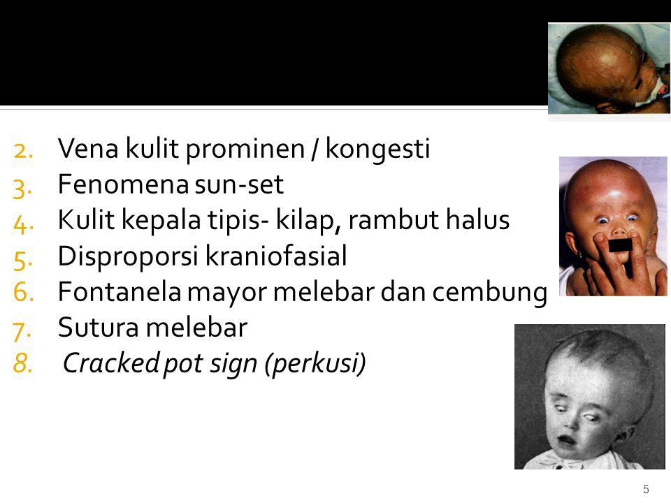 Vena kulit prominen / kongesti