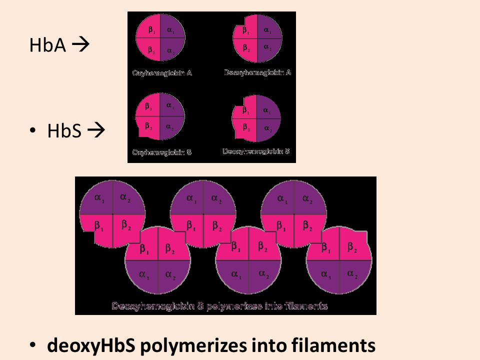 HbA  HbS  deoxyHbS polymerizes into filaments