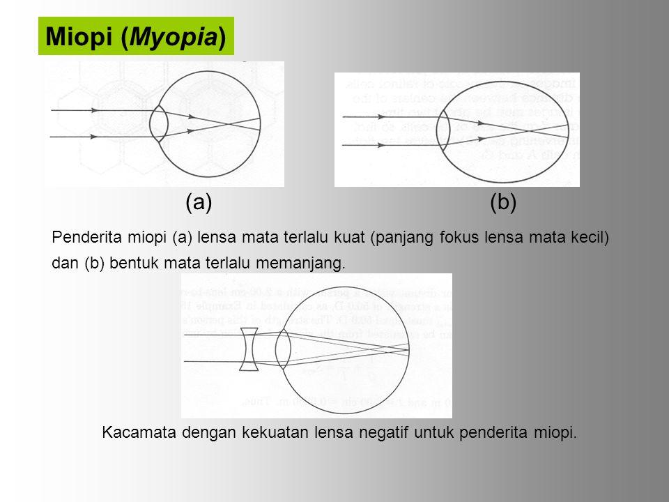 Miopi (Myopia) (a) (b)