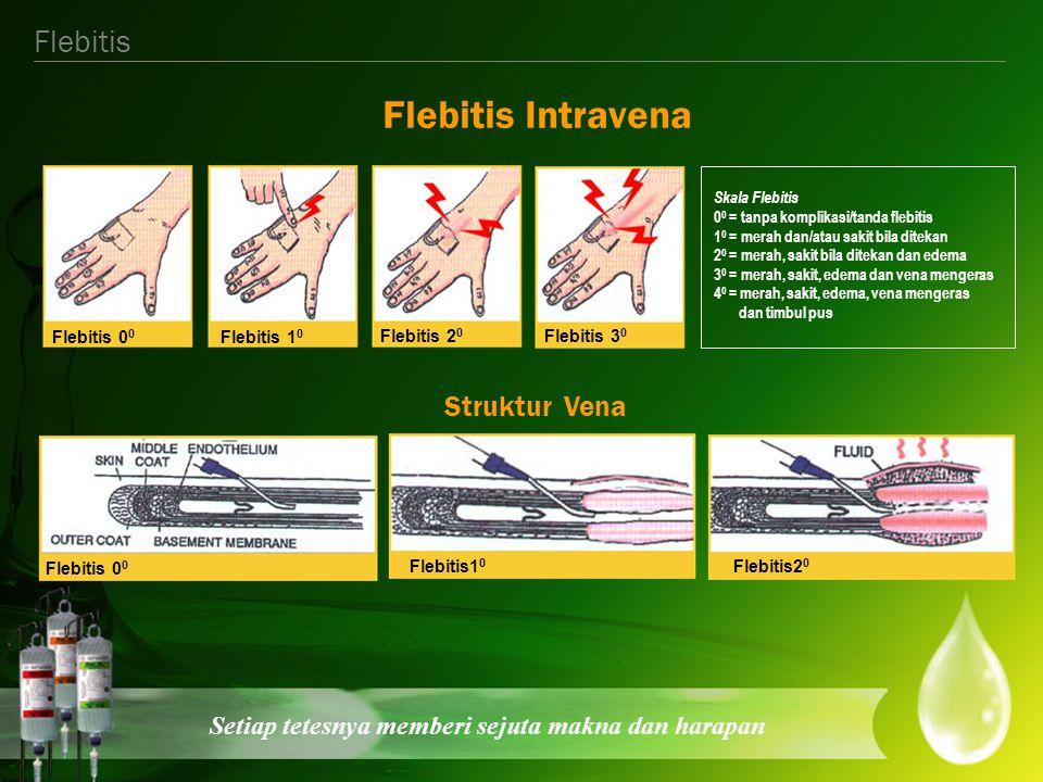 Flebitis Intravena Flebitis Struktur Vena Flebitis 10 Flebitis 20