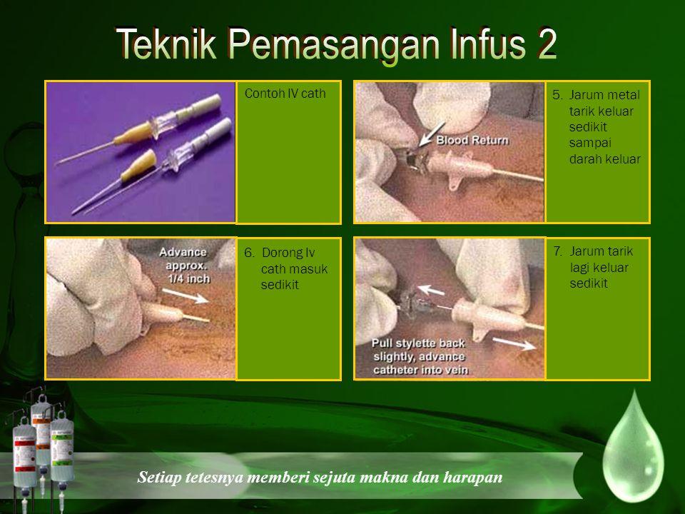 Teknik Pemasangan Infus 2