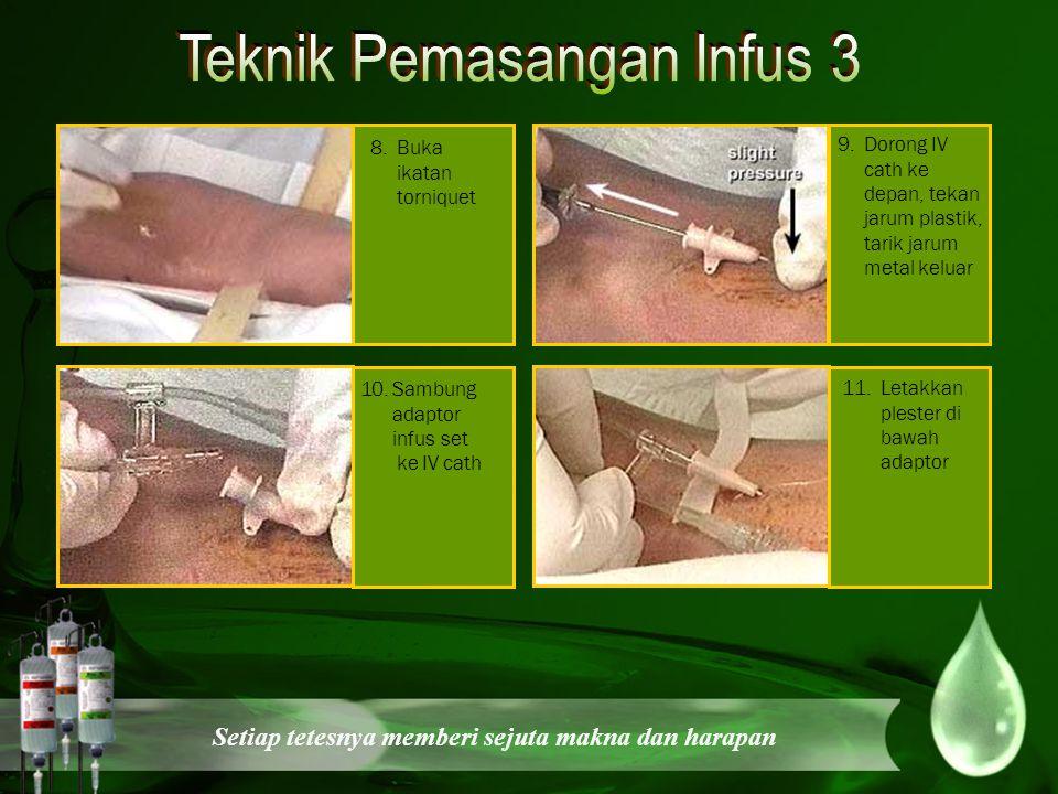 Teknik Pemasangan Infus 3