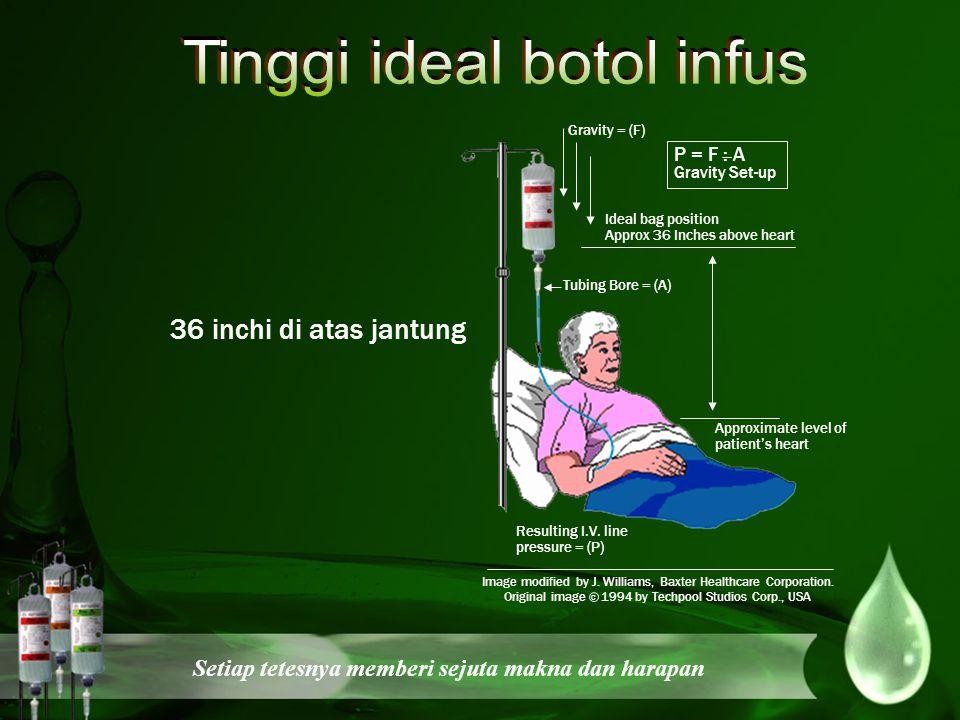 Tinggi ideal botol infus