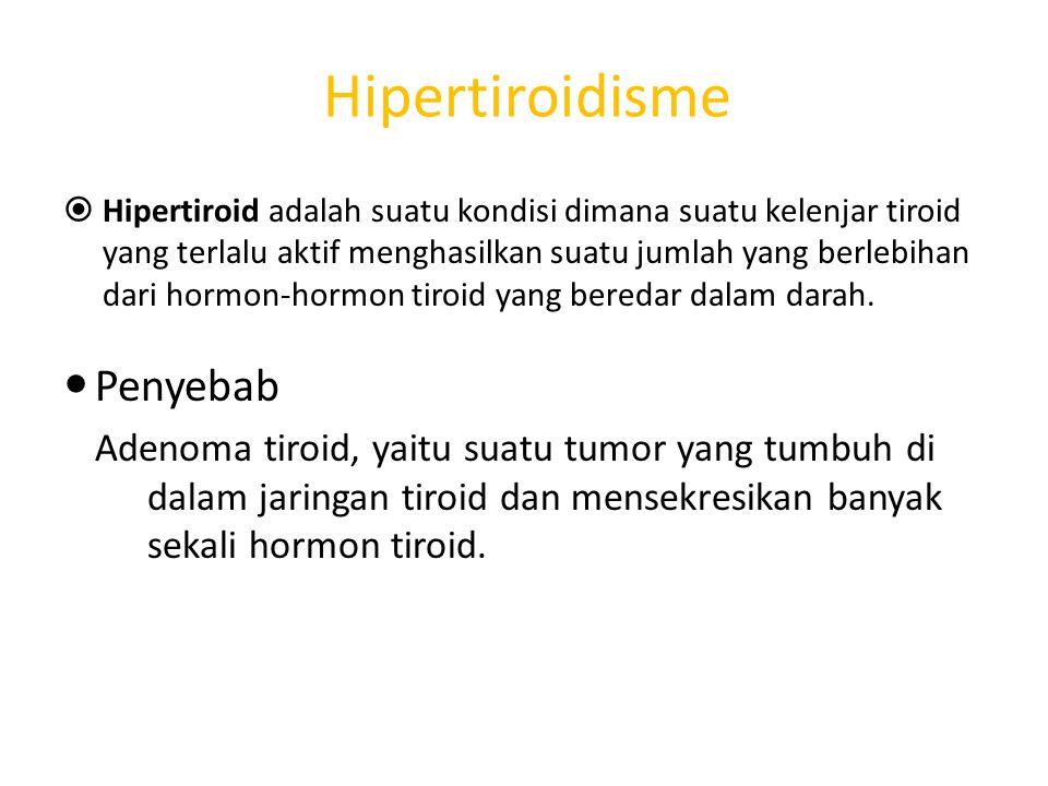 Hipertiroidisme Penyebab