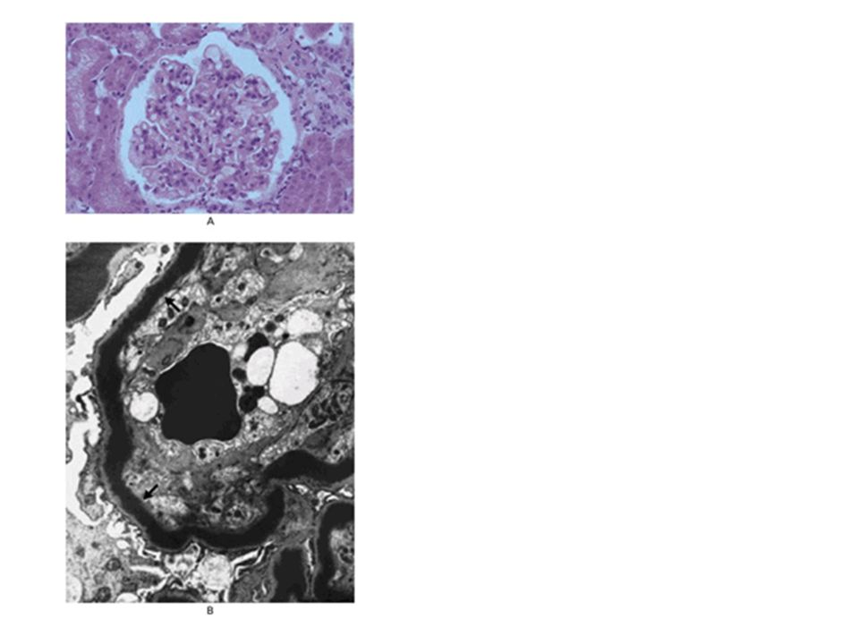 Figure 3. Glomerulonephritis in the Presence of C3 Nephritic Factor.