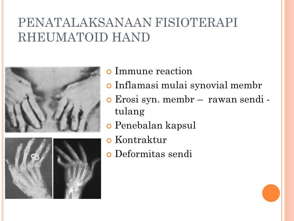 PENATALAKSANAAN FISIOTERAPI RHEUMATOID HAND