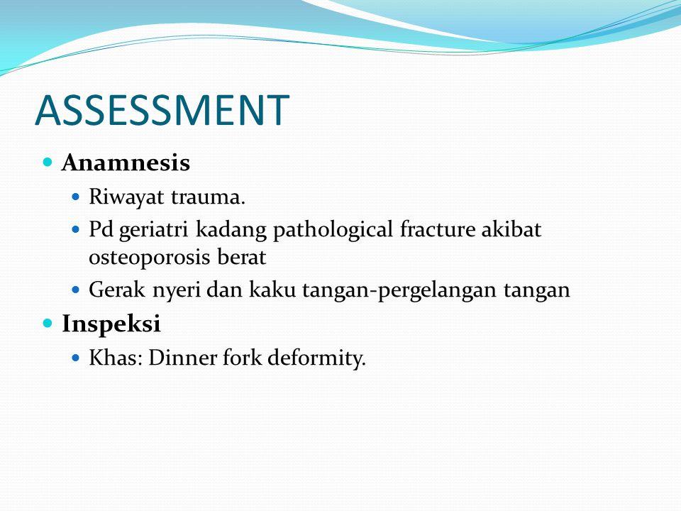 ASSESSMENT Anamnesis Inspeksi Riwayat trauma.