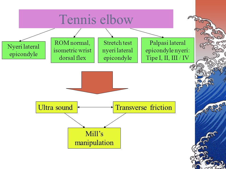 Tennis elbow Ultra sound Transverse friction Mill's manipulation