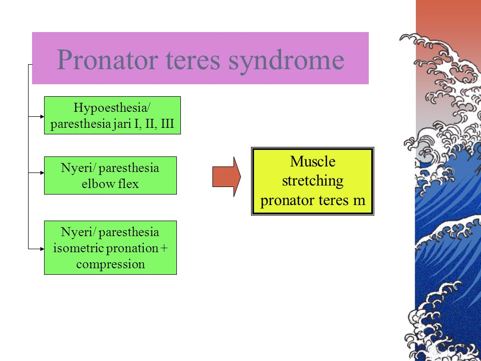 Pronator teres syndrome