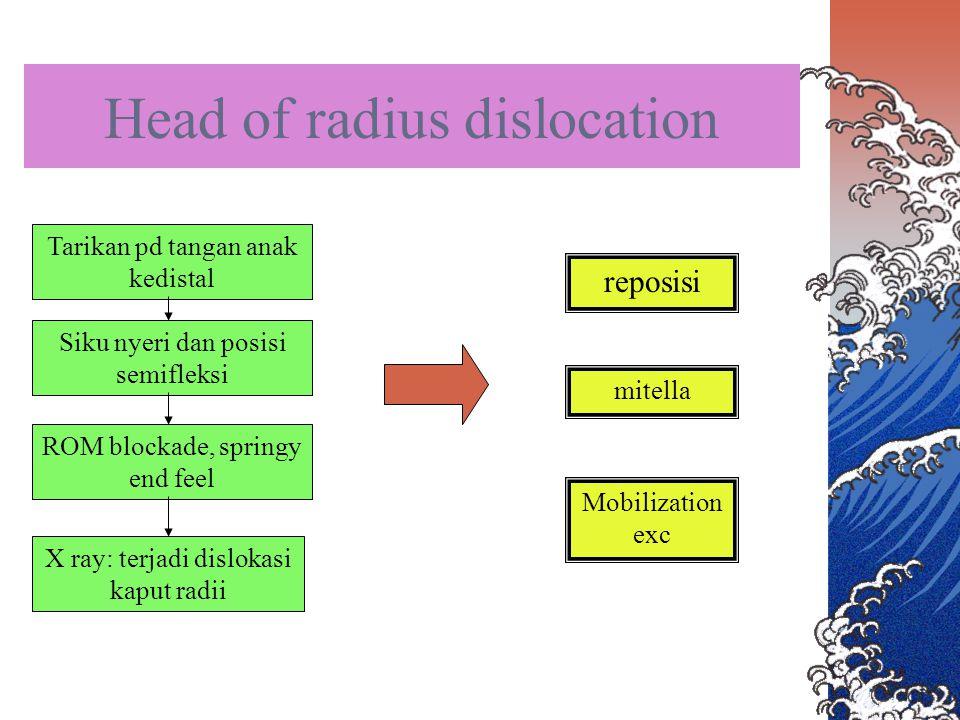 Head of radius dislocation