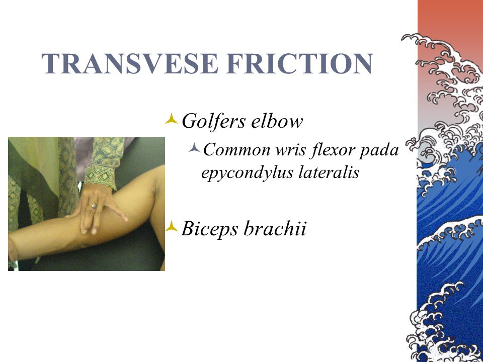 TRANSVESE FRICTION Golfers elbow Biceps brachii